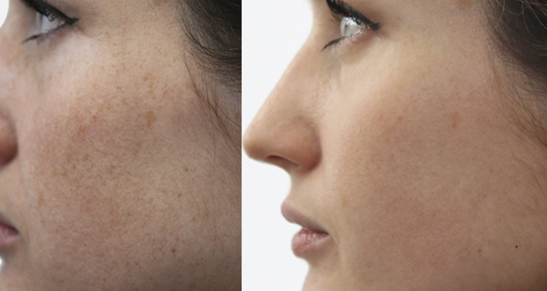 Renown Health Dermatology, Laser & Skin Care Seasonal Specials - A Pro Shows Us How To Complete a Perfect 10 Peel